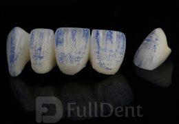 Metal keramika krunice
