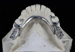 Parcijalna skeletirana vizil proteza