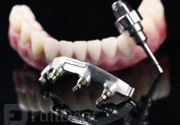 Radovi na implantatima precka na fabrickim abatmentima