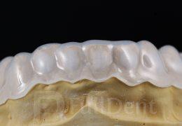 Udlaga za izbjeljivanje zuba