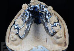 Vizil parcijalne skeletirane proteze