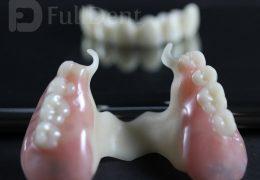 Biodentaplast bezmetalni skelet laboratorij FullDent