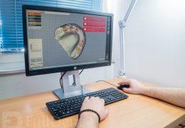 CAD CAM software Full Dent
