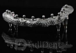 Hibridna-proteza-Co-Cr-konstrukcija-FullDent