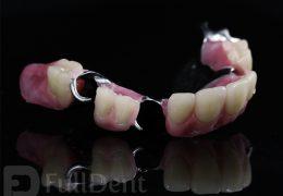 Parcijalna vizil proteza