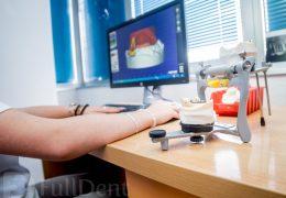 Tehnologija CAD CAM laboratorij Full Dent