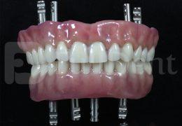 Monoblock Titanium Milled Bar Prosthesis eos 3D