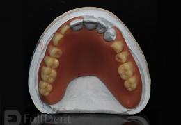 Proteza Breflex laboratorij FullDent