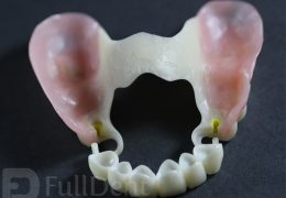 bio dentaplast partial denture