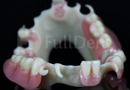 biodentaplast partial dentures