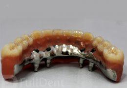 hybrid dentures fulldent lab