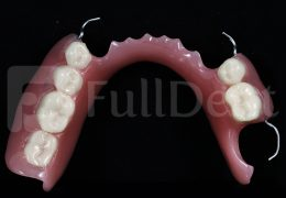 partial denture fulldent lab