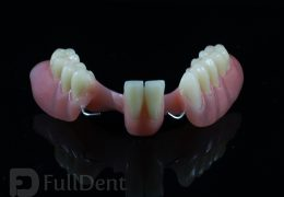 partial dentures dental lab