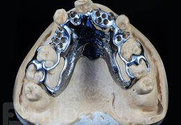 partial skeletal denture
