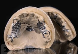 skeletal partial dental prostheses