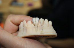 FullDent-Kurs slojevanja GC keramike
