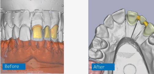 CAD CAM tehnologija prije i poslije