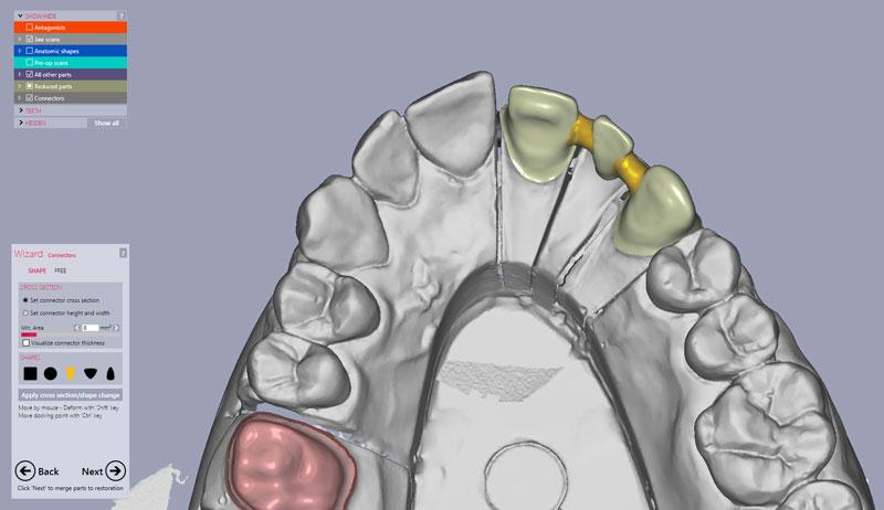 CAD CAM tehnologija zubotehnicki laboratorij