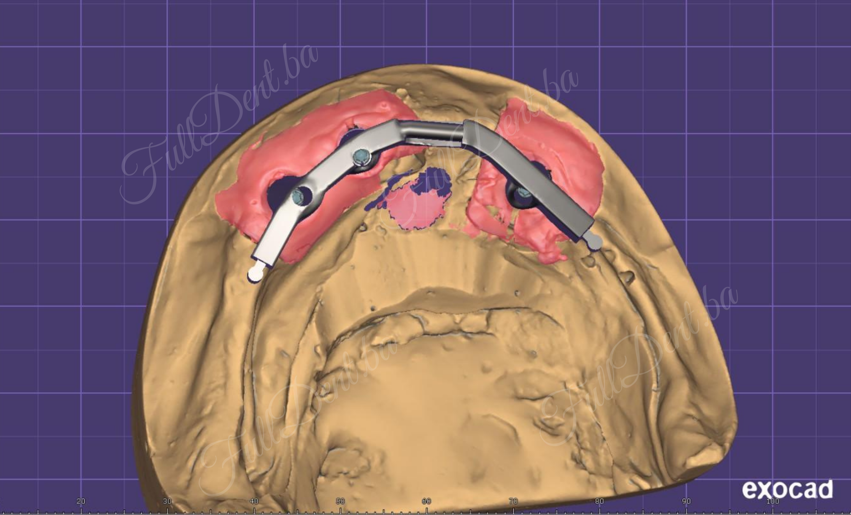 Modelacija implanto – protetskih radova